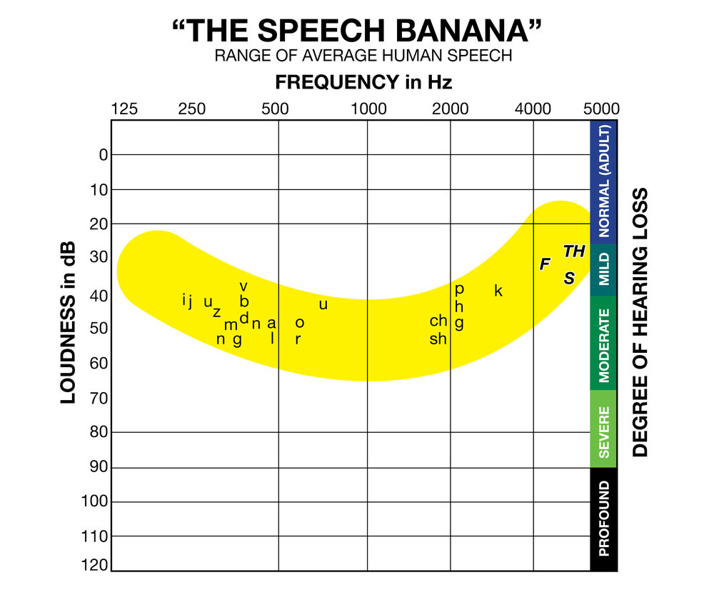 Diagnosis and symptoms of hearing loss: the speech banana